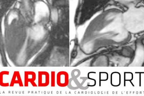 DIAGNOSTIC DE CARDIOMYOPATHIE HYPERTROPHIQUE
